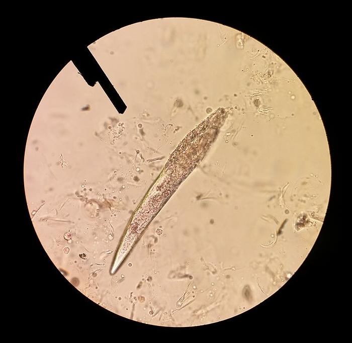 microbiom, piele, demodex, microscop